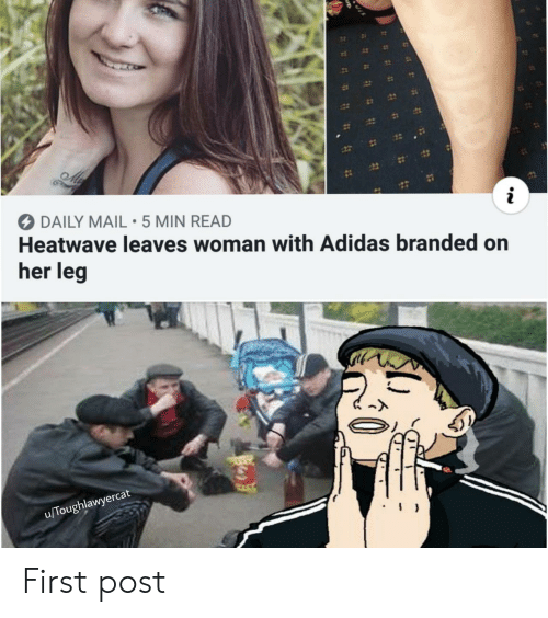 Adidas, Daily Mail, and Mail: 12  DAILY MAIL 5 MIN READ  Heatwave leaves woman with Adidas branded on  her leg  u/Toughlawyercat First post