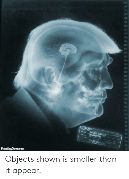 Politics, Trump, and Com: 340  330  310  200  10  36,469  TRUMP DONALD  BORNSTEIN  NAME  DR  RADION OGST  FreakingNews.com  RR Objects shown is smaller than it appear.