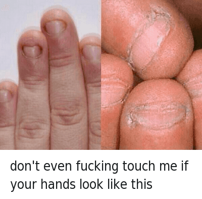 "Dicks, Dude, and Food: Don't even fucking touch me if your hands look like this  @tomfromthebar  HOW HAVE PEOPLE LIKE THIS EVEN MANAGED TO BREED INTO THE 21ST CENTURY.. WHEN PEOPLE LIKE THIS TOUCH YOUR FOOD YOU JUST SAY ""Just keep it, you dick""..FUCK.. THATS GROSS, I SWEAR IF I WAS ABOUT TO SMASH A 10/10 BUT PEEPED THOSE FINGERS, I WOULD PUNCH HER STRAIGHT IN THE JAW FOR EVEN COMING AT ME WITH THAT NON-SENSE. CALL HER A CAB(SHE'S PAYING) BUT I'D WARN THE CAB DRIVER ABOUT HER FINGERS JUST IN CASE HE AINT WITH IT.. WOULDN'T WANT TO FUCK UP THE DUDE'S NIGHT TOO.. UNFOLLOW ME IF YOURE FINGERS ARE LIKE THIS DONT LIKE MY SHIT WITH THAT BULLSHIT don't even fucking touch me if your hands look like this"