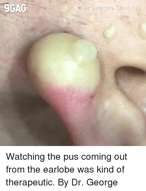 Dank, 🤖, and Pus: 9GAC  Dr George's Clinic   rr Watching the pus coming out from the earlobe was kind of therapeutic.  By Dr. George 美麗新城診所