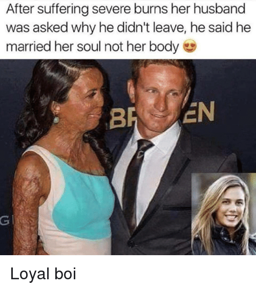 Husband, Suffering, and Her: After suffering severe burns her husband  was asked why he didn't leave, he said he  married her soul not her body  BR EN  GI Loyal boi