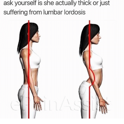 lumbar lordosis: ask yourself is she actually thick or just  suffering from lumbar lordosis
