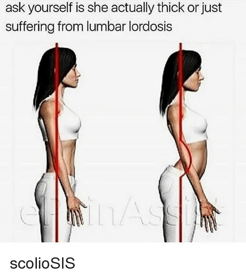 lumbar lordosis: ask yourself is she actually thick or just  suffering from lumbar lordosis scolioSIS