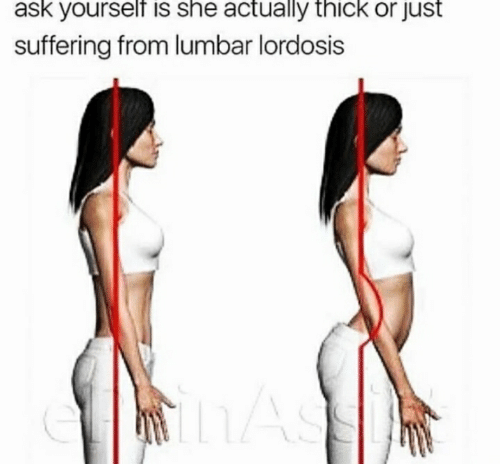 lumbar lordosis: ask yourself is she actually thick or just  suffering from lumbar lordosis  hAS