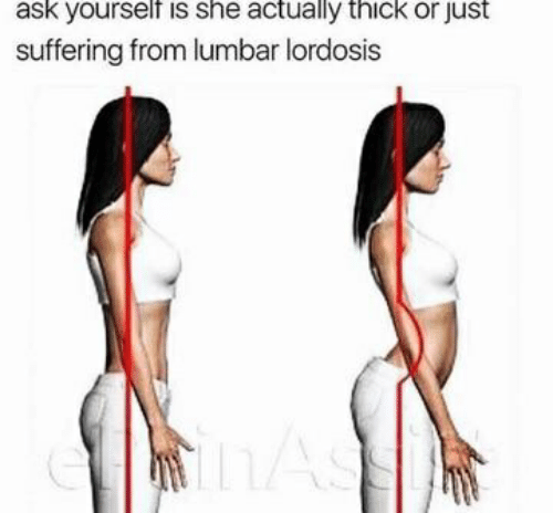 lumbar lordosis: ask yourself is she actually thick or just  suffering from lumbar lordosis  CLASS