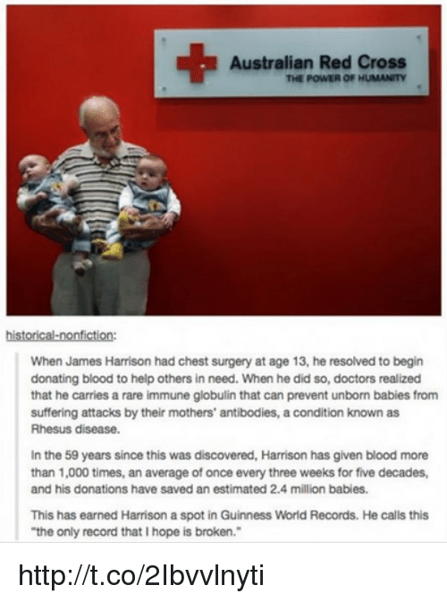 """Million Babies: Australian Red Cross  THE POWER OF HUMANITY  historical-nonfiction:  When James Harrison had chest surgery at age 13, he resolved to begin  donating blood to help others in need. When he did so, doctors realized  that he carries a rare immune globulin that can prevent unborn babies from  suffering attacks by their mothers' antibodies, a condition known as  Rhesus disease.  In the 59 years since this was discovered, Harrison has given blood more  than 1,000 times, an average of once every three weeks for five decades,  and his donations have saved an estimated 2.4 million babies.  This has earned Harrison a spot in Guinness World Records. He calls this  """"the only record that Ihope is broken."""" http://t.co/2Ibvvlnyti"""