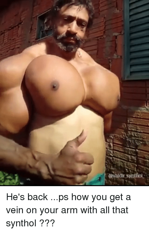 synthol: avaldir syntiol He's back ...ps how you get a vein on your arm with all that synthol ???