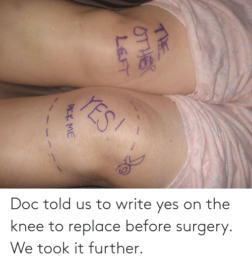 Replace: Doc told us to write yes on the knee to replace before surgery. We took it further.
