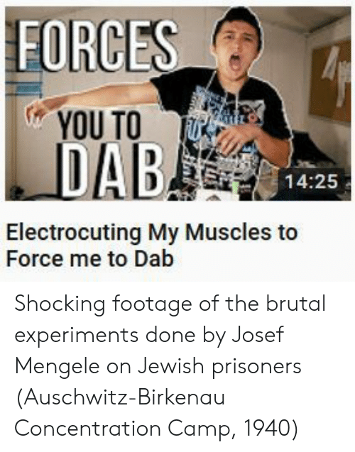 Auschwitz: FORCE  YOU TO UE  14:25  Electrocuting My Muscles to  Force me to Dab Shocking footage of the brutal experiments done by Josef Mengele on Jewish prisoners (Auschwitz-Birkenau Concentration Camp, 1940)