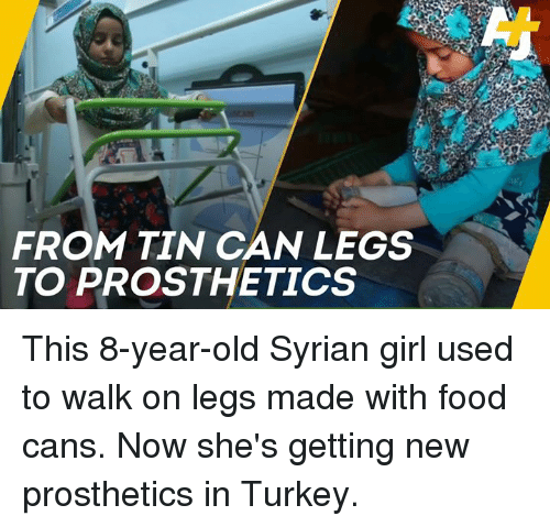 Food, Memes, and Girl: FROM TIN CAN LEGS  TO PROSTHETICS This 8-year-old Syrian girl used to walk on legs made with food cans. Now she's getting new prosthetics in Turkey.