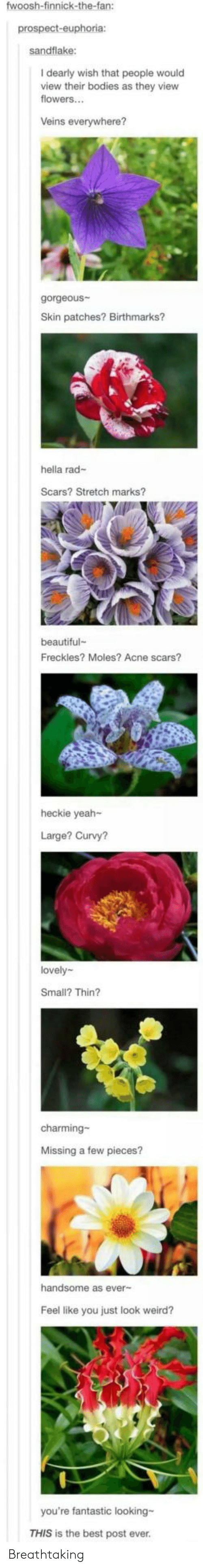 Beautiful, Bodies , and Weird: fwoosh-finnick-the-fan:  prospect-euphoria:  sandflake:  I dearly wish that people would  view their bodies as they view  flowers...  Veins everywhere?  gorgeous  Skin patches? Birthmarks?  hella rad-  Scars? Stretch marks?  beautiful  Freckles? Moles? Acne scars?  heckie yeah-  Large? Curvy?  lovely  Small? Thin?  charming-  Missing a few pieces?  handsome as ever-  Feel like you just look weird?  you're fantastic looking-  THIS is the best post ever. Breathtaking
