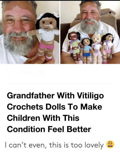 feel better: Grandfather With Vitiligo  Crochets Dolls To Make  Children With This  Condition Feel Better I can't even, this is too lovely 😩