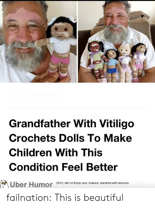 feel better: Grandfather With Vitiligo  Crochets Dolls To Make  Children With This  Condition Feel Better  2013, still no flying cars. Instead, blankets with sleeves.  Uber Humor failnation:  This is beautiful