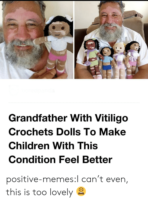 i cant even: Grandfather With Vitiligo  Crochets Dolls To Make  Children With This  Condition Feel Better positive-memes:I can't even, this is too lovely 😩