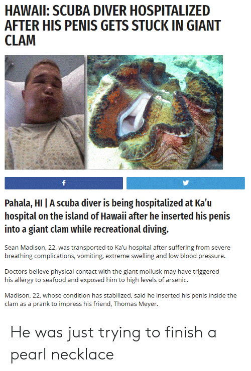 Prank, Pressure, and Blood Pressure: HAWAIL: SCUBA DIVER HOSPITALIZED  AFTER HIS PENIS GETS STUCK IN GIANT  Pahala, HI | A scuba diver is being hospitalized at Ka'u  hospital on the island of Hawaii after he inserted his penis  into a giant clam while recreational diving.  Sean Madison, 22, was transported to Ka'u hospital after suffering from severe  breathing complications, vomiting, extreme swelling and low blood pressure.  Doctors believe physical contact with the giant mollusk may have triggered  his allergy to seafood and exposed him to high levels of arsenic.  Madison, 22, whose condition has stabilized, said he inserted his penis inside the  clam as a prank to impress his friend, Thomas Meyer. He was just trying to finish a pearl necklace