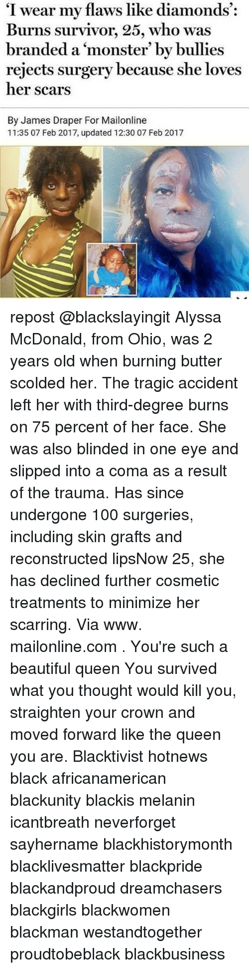 "Beautiful, McDonalds, and Memes: ""I wear my flaws like diamonds  Burns survivor, 25, who was  branded a monster' by bullies  rejects surgery because she loves  her scars  By James Draper For Mailonline  11:35 07 Feb 2017, updated 12:30 07 Feb 2017 repost @blackslayingit Alyssa McDonald, from Ohio, was 2 years old when burning butter scolded her. The tragic accident left her with third-degree burns on 75 percent of her face. She was also blinded in one eye and slipped into a coma as a result of the trauma. Has since undergone 100 surgeries, including skin grafts and reconstructed lipsNow 25, she has declined further cosmetic treatments to minimize her scarring. Via www. mailonline.com . You're such a beautiful queen You survived what you thought would kill you, straighten your crown and moved forward like the queen you are. Blacktivist hotnews black africanamerican blackunity blackis melanin icantbreath neverforget sayhername blackhistorymonth blacklivesmatter blackpride blackandproud dreamchasers blackgirls blackwomen blackman westandtogether proudtobeblack blackbusiness"
