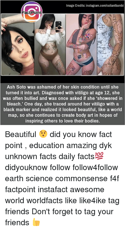 Ashly: Image Credits: instagram.com/radiantbambi  Factpoint  Ash Soto was ashamed of her skin condition until she  turned it into art. Diagnosed with vitiligo at age 12, she  was often bullied and was once asked if she 'showered in  bleach.' One day, she traced around her vitiligo with a  black marker and realized it looked beautiful, like a world  map, so she continues to create body art in hopes of  inspiring others to love their bodies. Beautiful 😯 did you know fact point , education amazing dyk unknown facts daily facts💯 didyouknow follow follow4follow earth science commonsense f4f factpoint instafact awesome world worldfacts like like4ike tag friends Don't forget to tag your friends 👍
