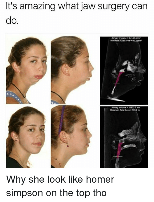 Homer Simpson, Memes, and Amazing: It's amazing what jaw surgery can  do.  Minimum Axiat Are02  Arway Volume 11833 3 Why she look like homer simpson on the top tho
