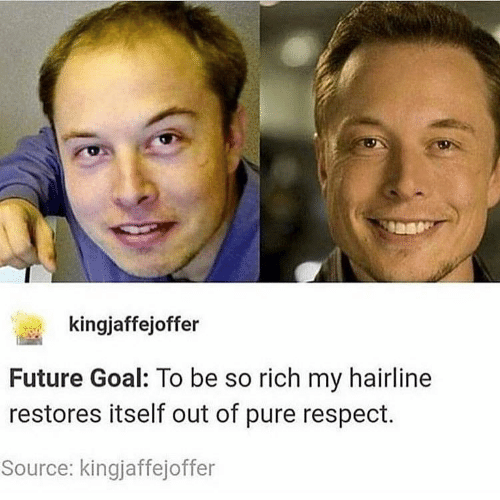 pure: kingjaffejoffer  Future Goal: To be so rich my hairline  restores itself out of pure respect.  Source: kingjaffejoffer