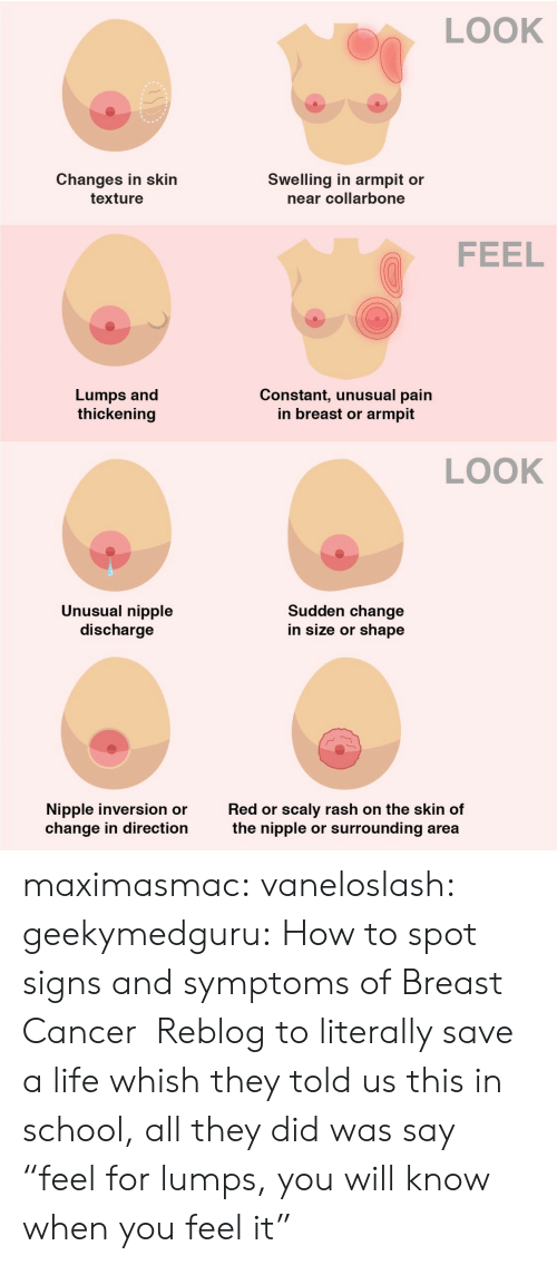 """Life, School, and Tumblr: LOOK  Changes in skin  Swelling in armpit or  near collarbone  texture  FEEL  Lumps and  thickening  Constant, unusual pain  in breast or  armpit  LOOK  Unusual nipple  discharge  Sudden change  in size or shape  scaly rash on the skin of  surrounding area  Nipple inversion or  change in direction  Red or  the nipple  or maximasmac: vaneloslash:  geekymedguru: How to spot signs and symptoms of Breast Cancer  Reblog to literally save a life   whish they told us this in school, all they did was say """"feel for lumps, you will know when you feel it"""""""