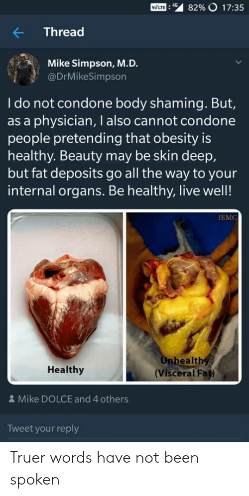 Live, Fat, and Condone: Mom : 49  82% o 17:35  Thread  Mike Simpson, M.D.  @DrMikeSimpson  I do not condone body shaming. But,  as a physician, I also cannot condone  people pretending that obesity is  healthy. Beauty may be skin deep,  but fat deposits go all the way to your  internal organs. Be healthy, live well!  IEMC  ealth  Healthy  (Visceral Fat)  & Mike DOLCE and 4 others  Tweet your reply Truer words have not been spoken