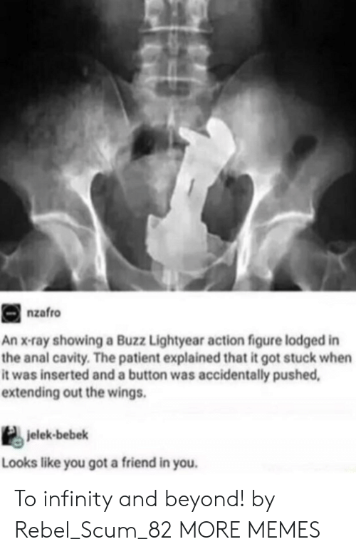 Dank, Memes, and Target: nzafro  An x-ray showing a Buzz Lightyear action figure lodged in  the anal cavity. The patient explained that it got stuck when  it was inserted and a button was accidentally pushed  extending out the wings.  jelek-bebek  Looks like you got a friend in you. To infinity and beyond! by Rebel_Scum_82 MORE MEMES