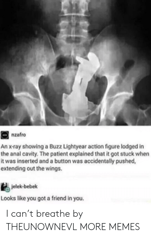 Dank, Memes, and Target: nzafro  An x-ray showing a Buzz Lightyear action figure lodged in  the anal cavity. The patient explained that it got stuck when  it was inserted and a button was accidentally pushed,  extending out the wings.  jelek-bebek  Looks like you got a friend in you. I can't breathe by THEUNOWNEVL MORE MEMES