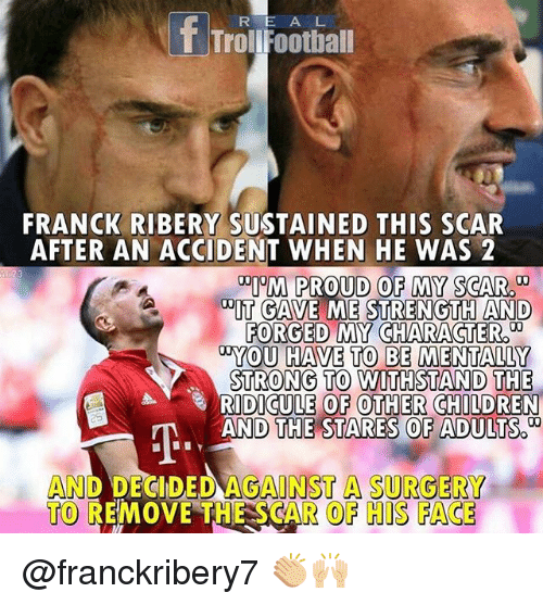 "ribery: R E A L  T TrolFootball  FRANCK RIBERY SUSTAINED THIS SCAR  AFTER AN ACCIDENT WHEN HE WAS 2  ""PM PROUD OF MY SCAR  DIT GAVE ME STRENGTH AND  FORGED MY CHARACTER  YOU HAVE TO BE MENTALLY  STRONG TO  RIDICULE OF OTHER CHILDREN  AND THE STARES OF ADULTS.  AND DECIDED AGANST A SURGERY  TO REMOVE THE SCAR OF HIS FACE @franckribery7 👏🏼🙌🏼"