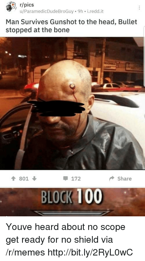 gunshot: , r/pics  u/ParamedicDudeBroGuy 9h i.redd.it  Man Survives Gunshot to the head, Bullet  stopped at the bone  會801 ↓  172  ◆ Share  BLOCK 100 Youve heard about no scope get ready for no shield via /r/memes http://bit.ly/2RyL0wC