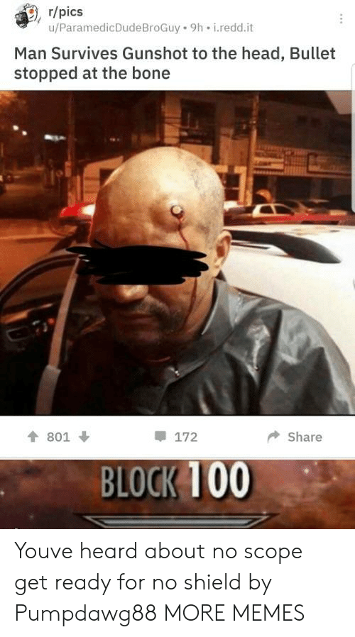 gunshot: , r/pics  u/ParamedicDudeBroGuy 9h i.redd.it  Man Survives Gunshot to the head, Bullet  stopped at the bone  會801 ↓  172  ◆ Share  BLOCK 100 Youve heard about no scope get ready for no shield by Pumpdawg88 MORE MEMES