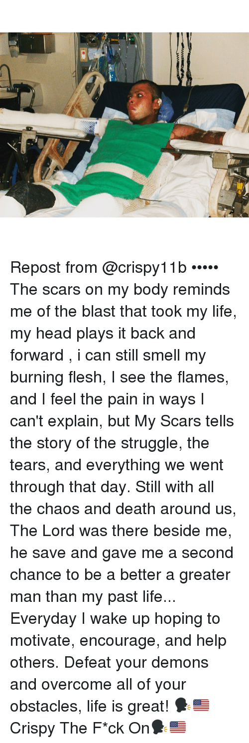overcomer: Repost from @crispy11b ••••• The scars on my body reminds me of the blast that took my life, my head plays it back and forward , i can still smell my burning flesh, I see the flames, and I feel the pain in ways I can't explain, but My Scars tells the story of the struggle, the tears, and everything we went through that day. Still with all the chaos and death around us, The Lord was there beside me, he save and gave me a second chance to be a better a greater man than my past life... Everyday I wake up hoping to motivate, encourage, and help others. Defeat your demons and overcome all of your obstacles, life is great! 🗣🇺🇸Crispy The F*ck On🗣🇺🇸