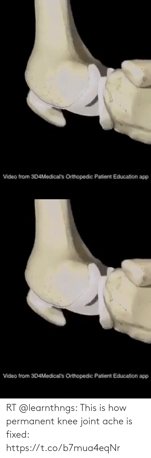 Knee: RT @learnthngs: This is how permanent knee joint ache is fixed: https://t.co/b7mua4eqNr