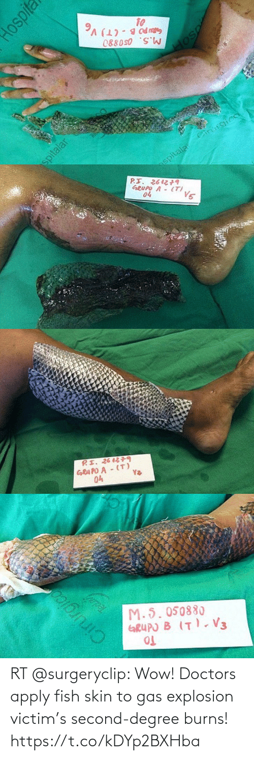explosion: RT @surgeryclip: Wow! Doctors apply fish skin to gas explosion victim's second-degree burns! https://t.co/kDYp2BXHba