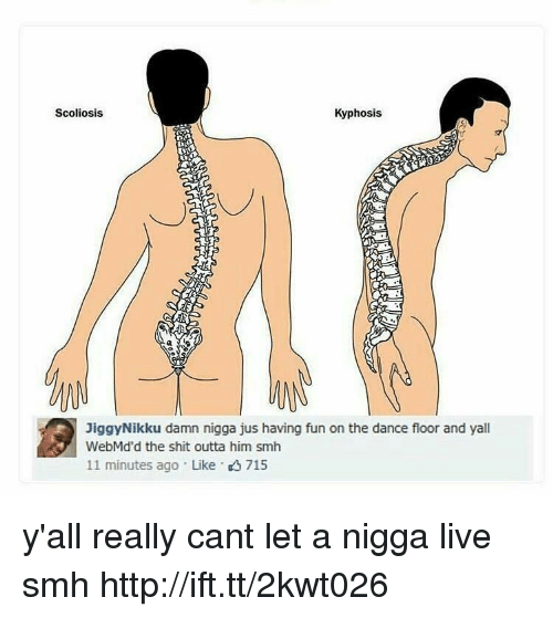 scoliosis: Scoliosis  Kyphosis  JiggyNikku damn nigga jus having fun on the dance floor and yal  WebMd'd the shit outta him smh  11 minutes ago Like 715 y'all really cant let a nigga live smh http://ift.tt/2kwt026