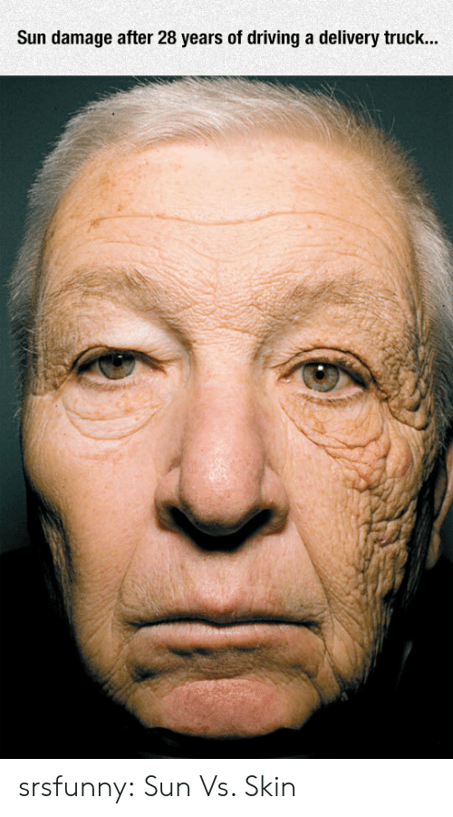 Driving, Tumblr, and Blog: Sun damage after 28 years of driving a delivery truck... srsfunny:  Sun Vs. Skin