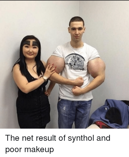 synthol: The net result of synthol and poor makeup