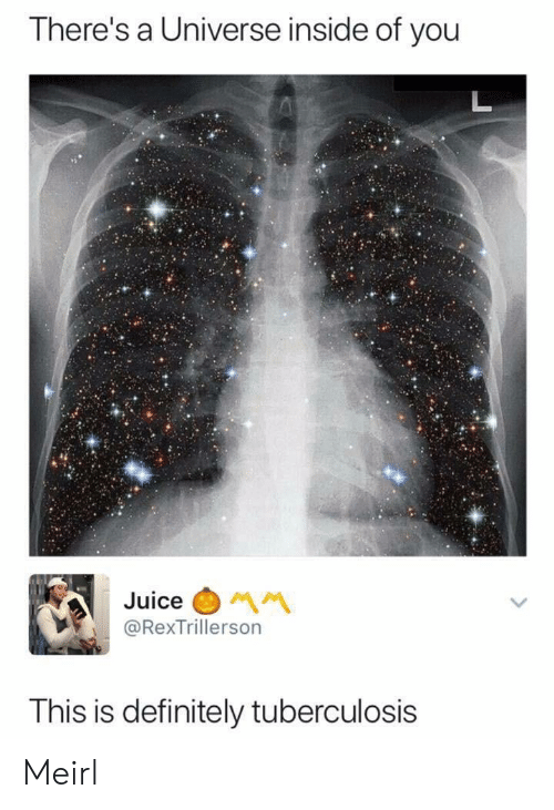 Definitely, Juice, and MeIRL: There's a Universe inside of you  Juice  @RexTrillerson  This is definitely tuberculosis Meirl
