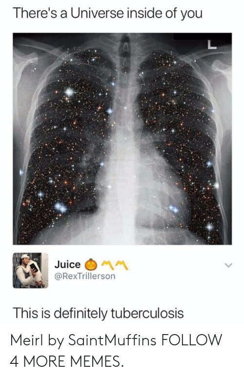 tuberculosis: There's a Universe inside of you  L  Juice  MM  @RexTrillerson  This is definitely tuberculosis Meirl by SaintMuffins FOLLOW 4 MORE MEMES.