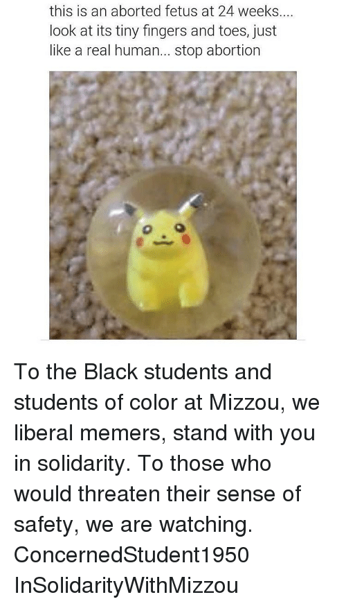 mizzou: this is an aborted fetus at 24 weeks....  look at its tiny fingers and toes, just  like a real human  stop abortion To the Black students and students of color at Mizzou, we liberal memers, stand with you in solidarity. To those who would threaten their sense of safety, we are watching.  ConcernedStudent1950  InSolidarityWithMizzou