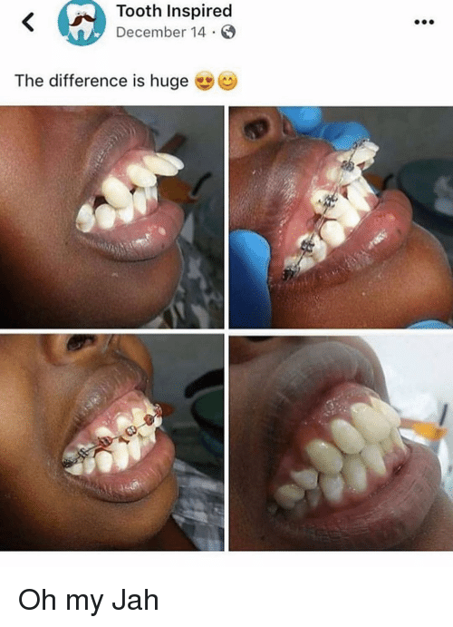 Memes, 🤖, and Huge: Tooth Inspired  December 14  The difference is huge Oh my Jah