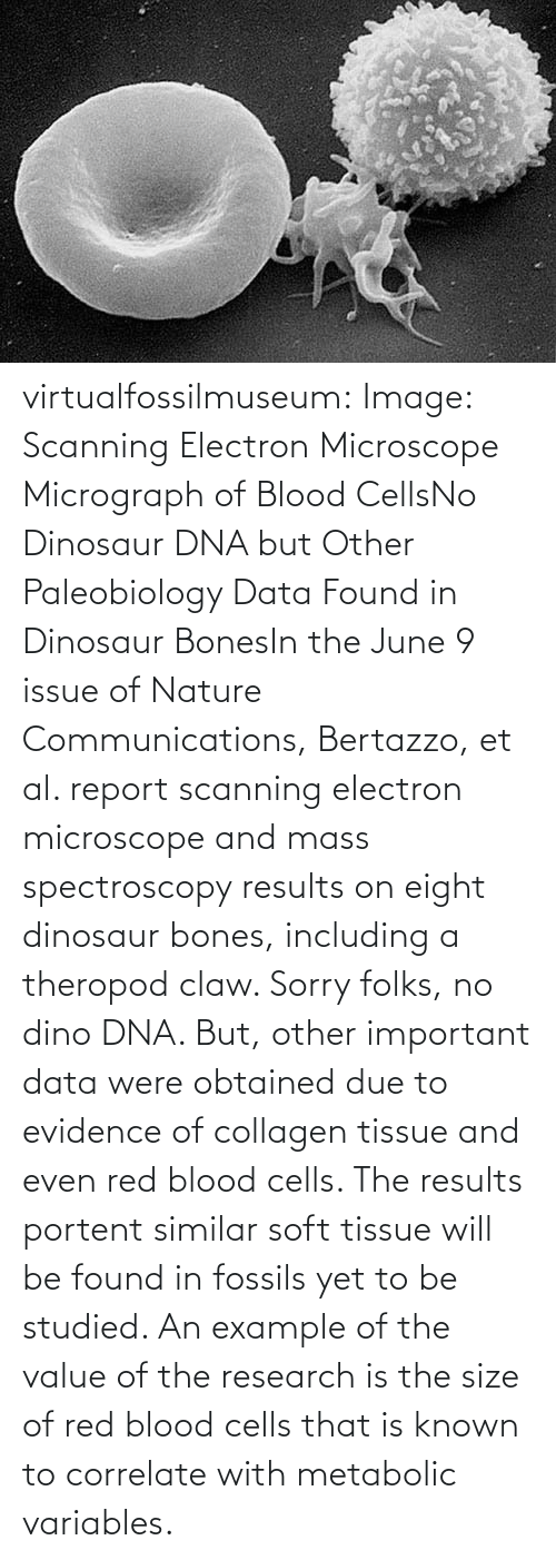 Obtained: virtualfossilmuseum:  Image: Scanning Electron Microscope Micrograph of Blood CellsNo Dinosaur DNA but Other Paleobiology Data Found in Dinosaur BonesIn the June 9 issue of Nature Communications, Bertazzo, et al. report scanning electron microscope and mass spectroscopy results on eight dinosaur bones, including a theropod claw. Sorry folks, no dino DNA. But, other important data were obtained due to evidence of collagen tissue and even red blood cells. The results portent similar soft tissue will be found in fossils yet to be studied. An example of the value of the research is the size of red blood cells that is known to correlate with metabolic variables.