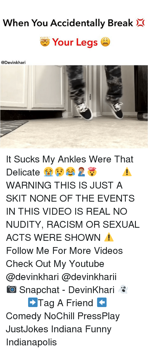 Funny, Memes, and Racism: When You Accidentally BreakX  Your Legs  @Devinkhari It Sucks My Ankles Were That Delicate 😭😢😂🤦🏽‍♂️🤯 ━━━━━━━ ⚠️ WARNING THIS IS JUST A SKIT NONE OF THE EVENTS IN THIS VIDEO IS REAL NO NUDITY, RACISM OR SEXUAL ACTS WERE SHOWN ⚠️ ━━━━━━━ Follow Me For More Videos Check Out My Youtube @devinkhari @devinkharii ━━━━━━━ 📷 Snapchat - DevinKhari 👻 ━━━━━━━ ➡️Tag A Friend ⬅️ Comedy NoChill PressPlay JustJokes Indiana Funny Indianapolis
