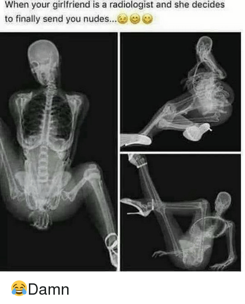 Memes, Nudes, and Girlfriend: When your girlfriend is a radiologist and she decides  to finally send you nudes 😂Damn