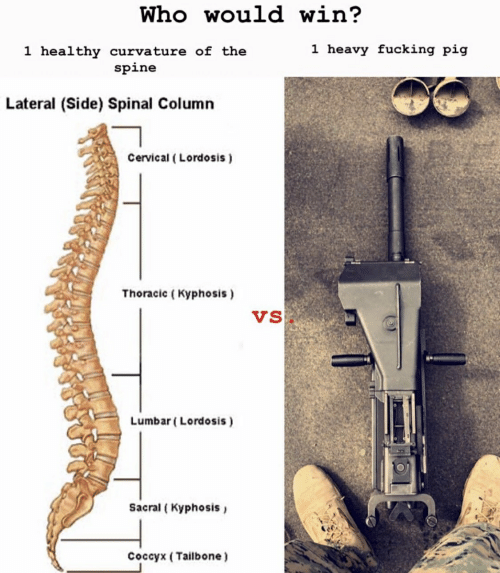 lumbar lordosis: Who would win?  1 heavy fucking pig  1 healthy curvature of thee  spine  Lateral (Side) Spinal Column  Cervical (Lordosis)  Thoracic (Kyphosis)  Vs  Lumbar (Lordosis)  Sacral ( Kyphosis  Coccyx (Tailbone)