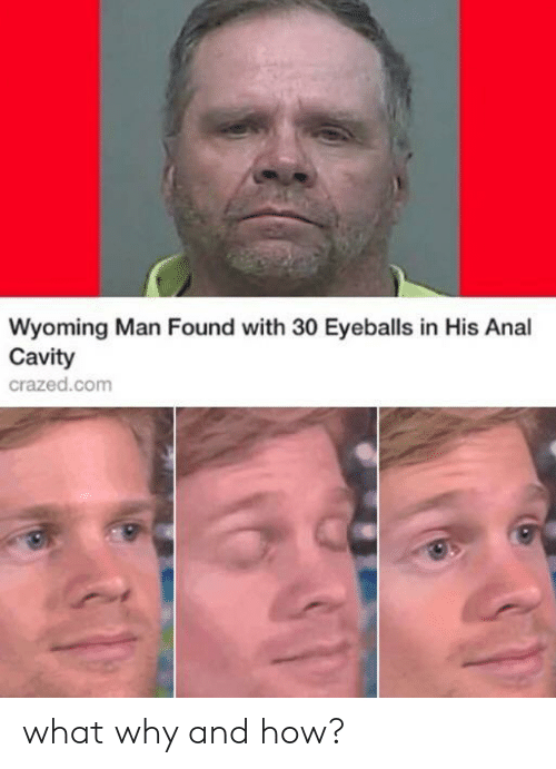 Anal, How, and Wyoming: Wyoming Man Found with 30 Eyeballs in His Anal  Cavity  crazed.com what why and how?