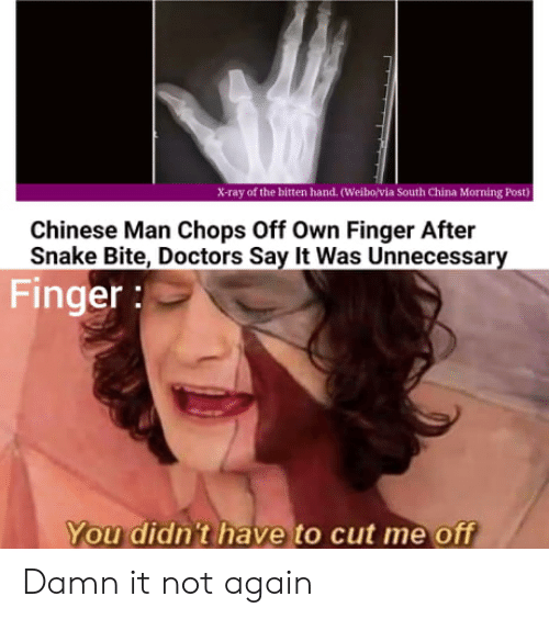 China, Say It, and Chinese: X-ray of the bitten hand. (Weibo/via South China Morning Post)  Chinese Man Chops Off Own Finger After  Snake Bite, Doctors Say It Was Unnecessary  Finger:  You didn't have to cut me off Damn it not again